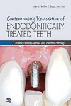 CONTEMPORARY RESTORATION OF ENDODONTICALLY TREATED TEETH | 9780867155716 | Portada