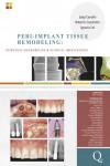 Peri-Implant Tissue Remodeling: Scientific Background & Clinical Implications - 9788874921669 - Libros de medicina