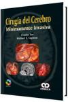 Cirugía del Cerebro Mínimamente Invasiva + DVD - 9789588950273 - Libros de medicina