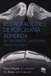 Restauraciones de Porcelana Adherida en los Dientes Anteriores: Un Enfoque Biomimético - 9788489873285 - Libros de medicina