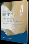 RBFDPs - Resin-Bonded Fixed Dental Prostheses | 9781786980205 | Portada