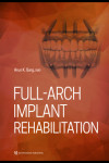 Full-Arch Implant Rehabilitation | 9780867158090 | Portada