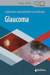 Glaucoma + ebook | 9789874922724 | Portada