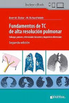 Fundamentos de TC de Alta Resolución Pulmonar + ebook | 9789874922953 | Portada